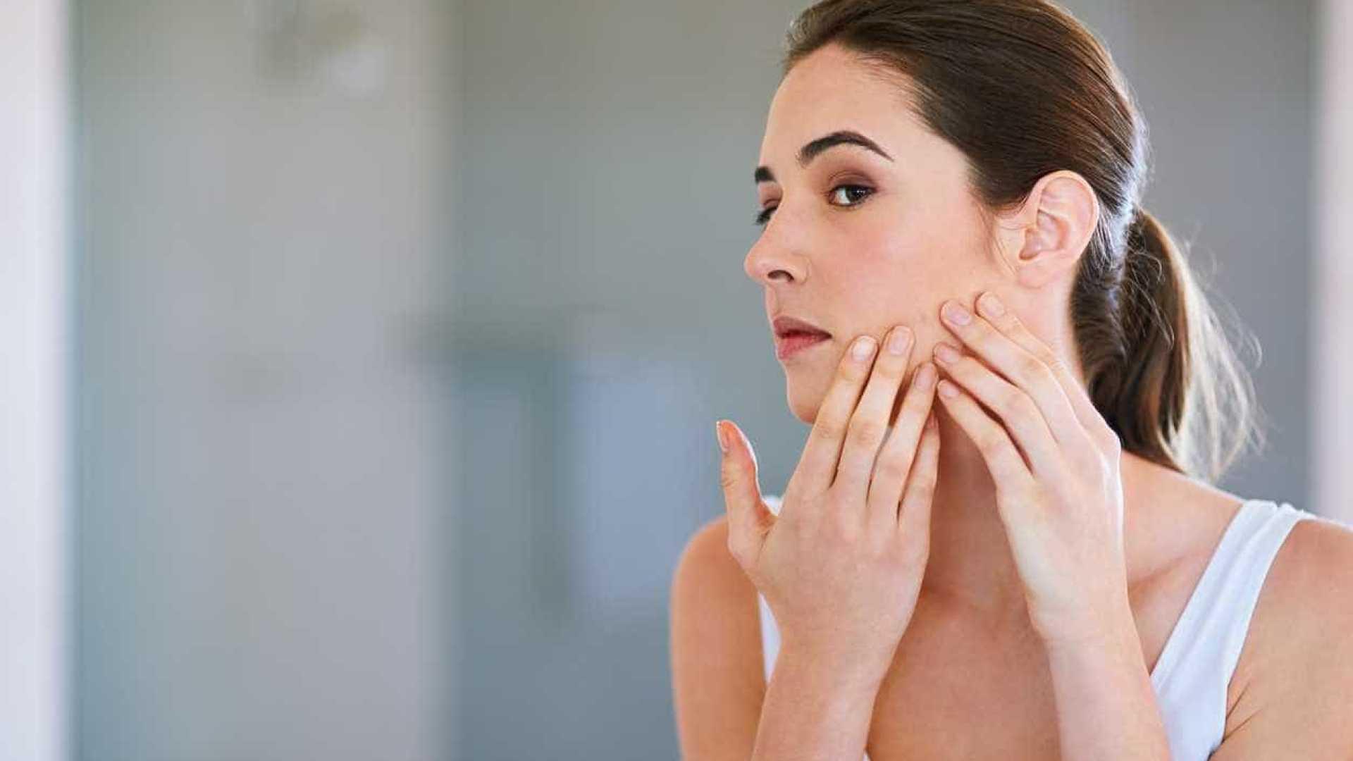 tratamento da acne tardia
