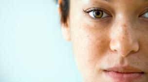 tratamento para o melasma