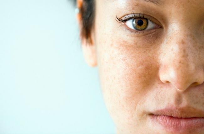 Melasma: 5 tratamentos que amenizam as temidas manchas